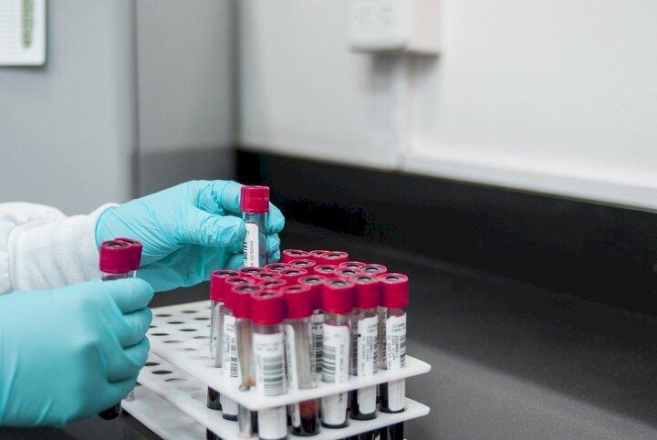 В Казахстане за сутки выявили 872 заболевших коронавирусом