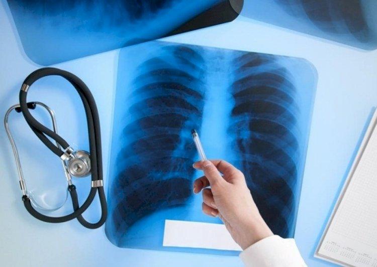 Месячник по борьбе с туберкулезом стартует в Алматы