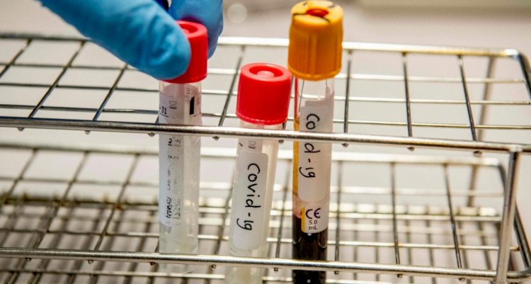 В Казахстане за сутки выявлено 2586 случаев заражения коронавирусом