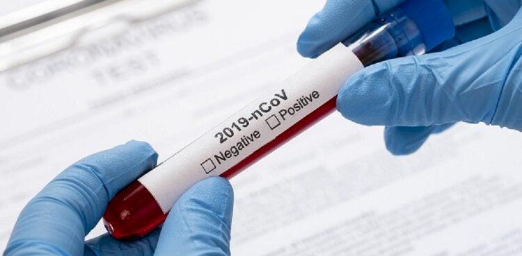 1145 человек заболели коронавирусом в Казахстане