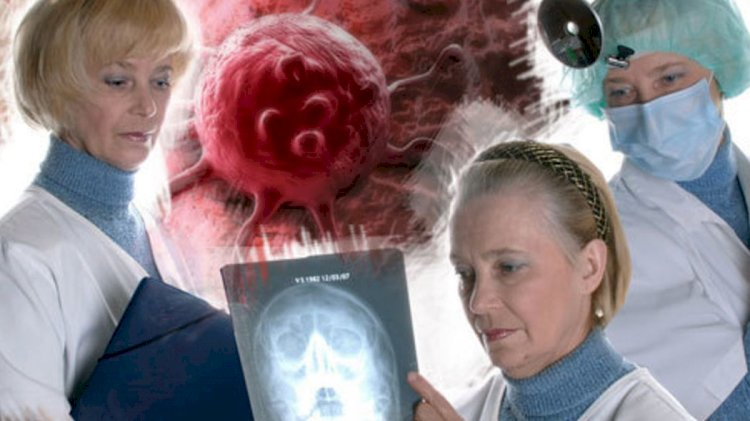 Онкологи назвали четыре симптома «незаметного» поражения организма раком